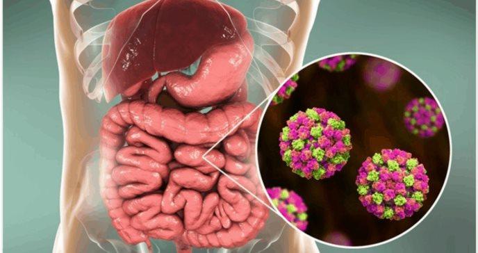 Norovirus, el virus del vómito que preocupa por su alta contagiosidad