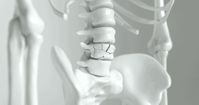 Los suplementos de calcio y vitamina D no evitan fracturas de huesos