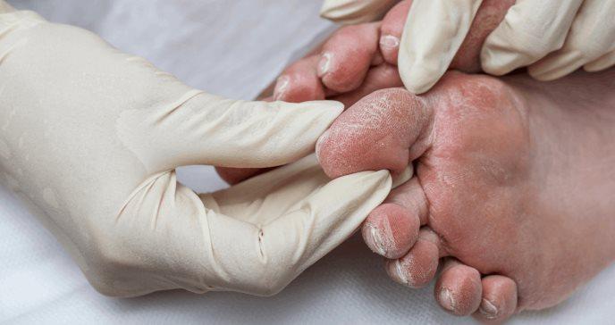 Pie diabético: síntomas y cómo evitar una amputación