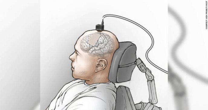 Implante cerebral ayuda a un hombre a hablar a través de una computadora