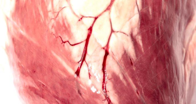 Riesgo cardiovascular en pacientes con hígado graso no alcohólico