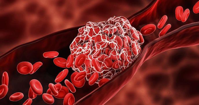 Paciente puertorriqueño desarrolla rara tríada de trombocitopenia y fallo renal