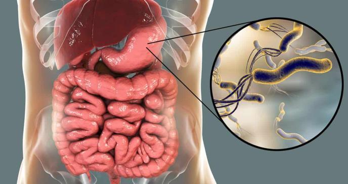 La bacteria Helicobacter Pylori continúa causando enfermedades gástricas en Puerto Rico