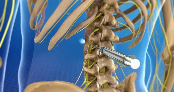 Cuestionan la utilidad de los bloqueos paravertebrales como tratamiento del dolor crónico
