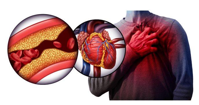 Dolor en el pecho, fatiga y otros síntomas del infarto de miocardio: conoce las causas y tratamiento