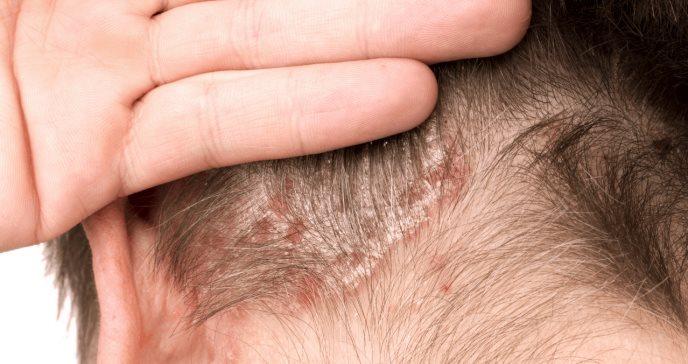 Psoriasis del cuero cabelludo: síntomas, causas y tratamiento