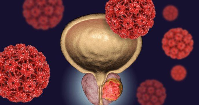 Presentan nueva herramienta de inteligencia artificial para la detección precoz del cáncer de próstata