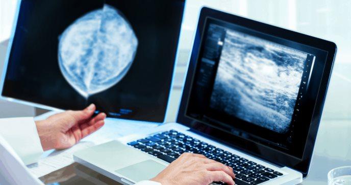 Investigadores presentan nueva estrategia para combatir el cáncer de mama agresivo