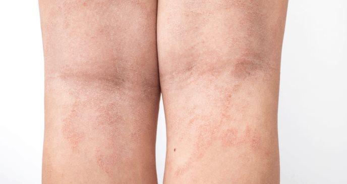 Estudio demuestra superioridad de RINVOQ® para tratar la dermatitis atópica