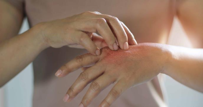 SKYRIZI® ahora disponible en los EE.UU. en inyección única de 150 mg para adultos con psoriasis