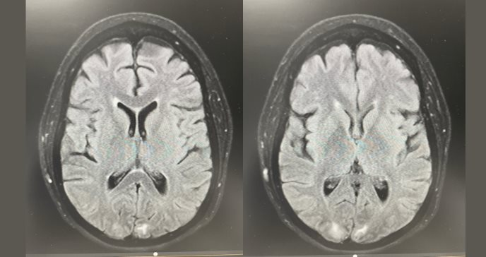 Puerto Rico registra raro caso de síndrome encefalopático tras intervención de cirugía bariátrica