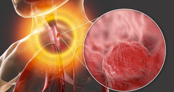 Investigadores confirman que el adenocarcinoma esofágico siempre va precedido de esófago de Barrett