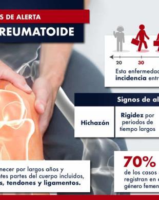 Artritis Reumatoide: signos de alerta