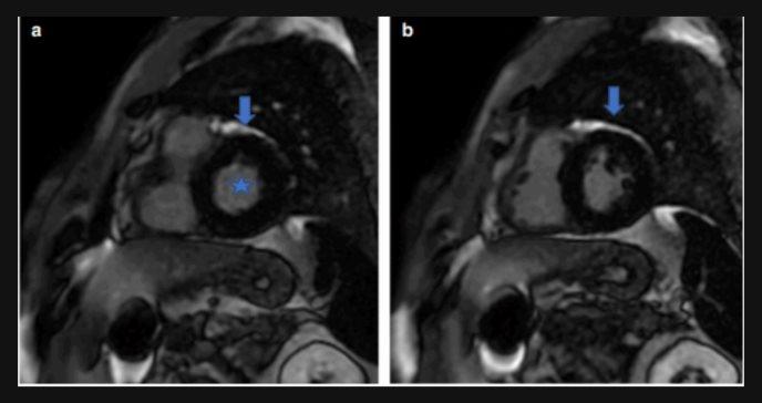 Rara complicación cardíaca se registra en paciente contagiado con COVID19, instando al uso del ECG
