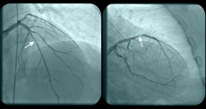 Estudio demuestra que inhibidor es efectivo en insuficiencia cardiaca con fracción de eyección preservada