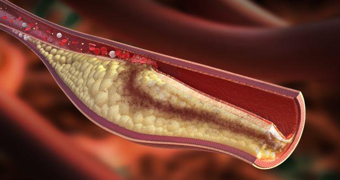 Investigadores confirman la relación entre el colesterol en sangre y riesgo de demencia