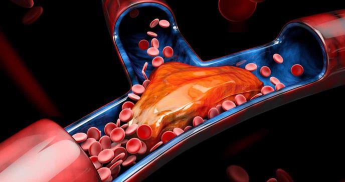Trombosis venosa: hinchazón o enrojecimiento de la pierna como síntomas