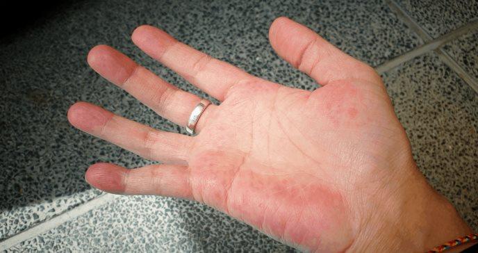 ¿Qué es el lupus? Estos son sus síntomas y su tratamiento