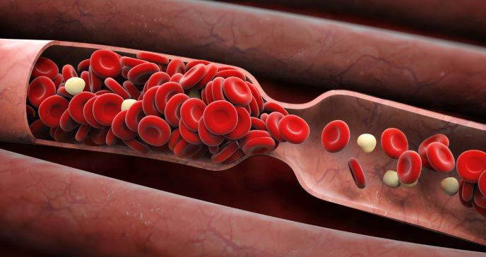 Qué son los coágulos sanguíneos y a quienes afecta