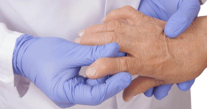 Desarrollan vacuna experimental contra la artritis reumatoide