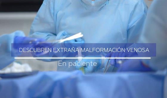#ExclusivoMSP - Descubren extraña malformación venosa en paciente