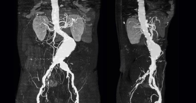 Tirosina hidroxilasa podría ser un fármaco eficiente para el control del aneurisma de aorta abdominal