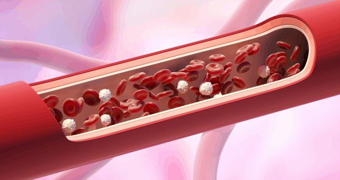 Mejorar la salud de los vasos sanguíneos en el cerebro ayudaría a combatir el alzhéimer