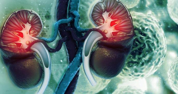 Cáncer de riñón avanzado