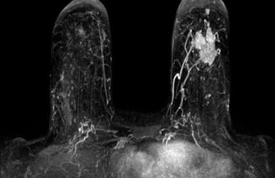 Cáncer de seno: de la epidemiología al tratamiento