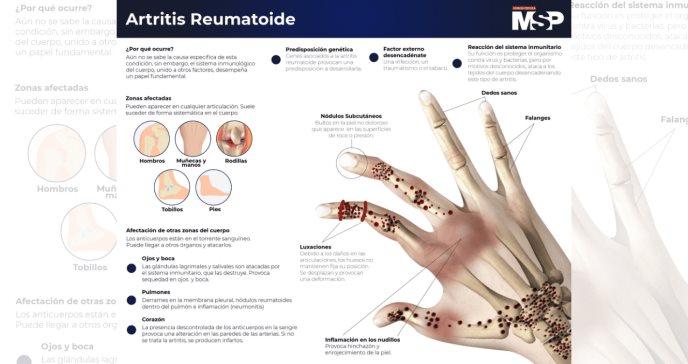 #Especial - Artritis Reumatoide