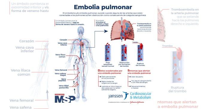 #ExclusivoMSP - Embolia Pulmonar