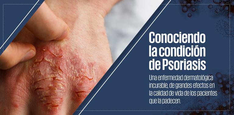 Conociendo la condición de Psoriasis