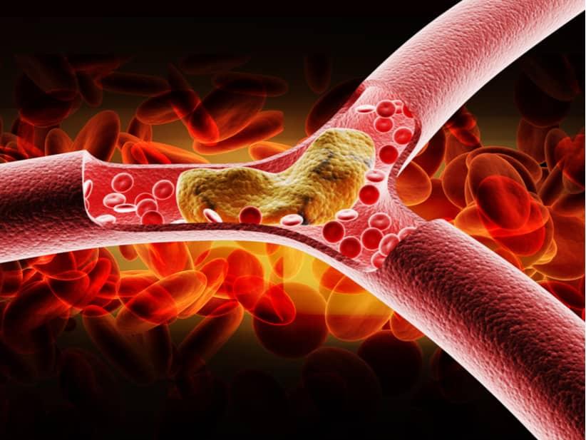 El sLRP1 es un biomarcador que juega un importante papel en el inicio y en la progresión de la aterosclerosis.
